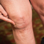 The Best Knee Replacement Surgeons in NCR
